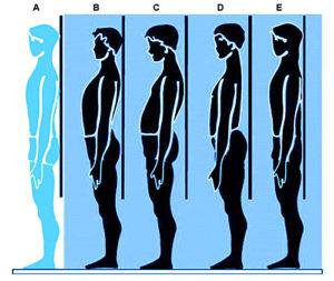 A. Soggetto normale B. Piano allineato, aumento delle curve C. Piano scapolare posteriore D. Dorso piatto, piano scapolare anteriore E. Piano allineato, diminuzione delle curve